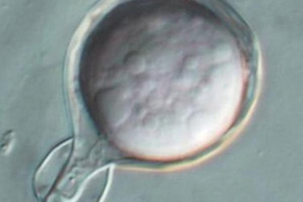 kauri-dieback-spore